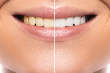 Close up of female mouth. Comparison after teeth whitening