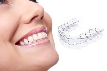 allineatore dentale_invisibile